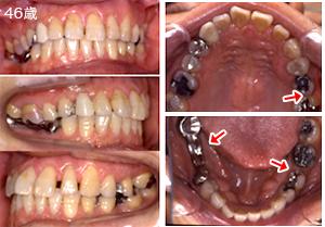 症例1 ひどく傾いた奥歯を整えてから、欠損補綴を行った例 治療前1