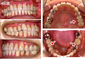 症例1 ひどく傾いた奥歯を整えてから、欠損補綴を行った例 治療後1