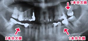 症例1 ひどく傾いた奥歯を整えてから、欠損補綴を行った例 治療前2