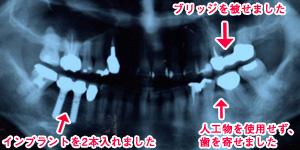 症例1 ひどく傾いた奥歯を整えてから、欠損補綴を行った例 治療後2