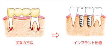 3.従来の入れ歯のようにガタつきがありません。