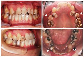自家歯牙移植 初診